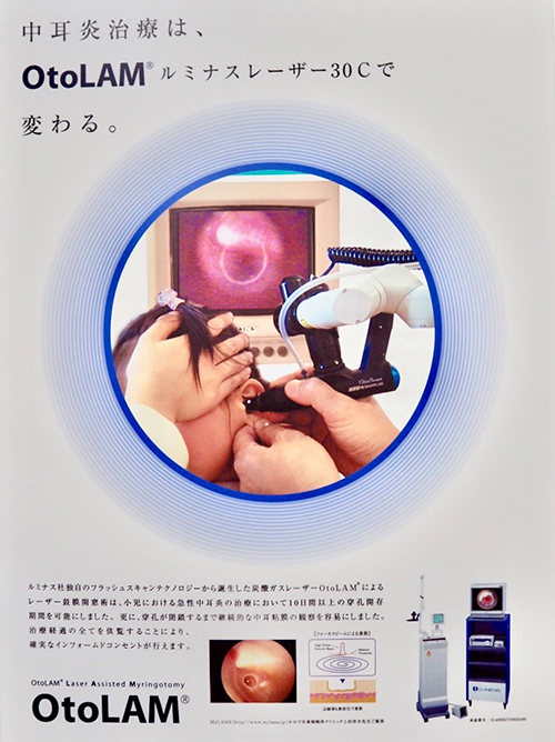 【画像】鼓膜切開用レーザー