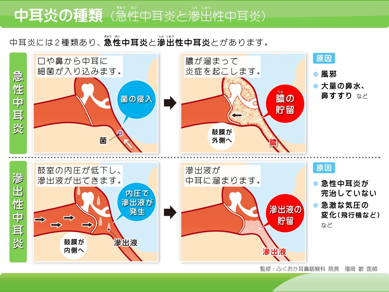 【画像】中耳炎の種類解説