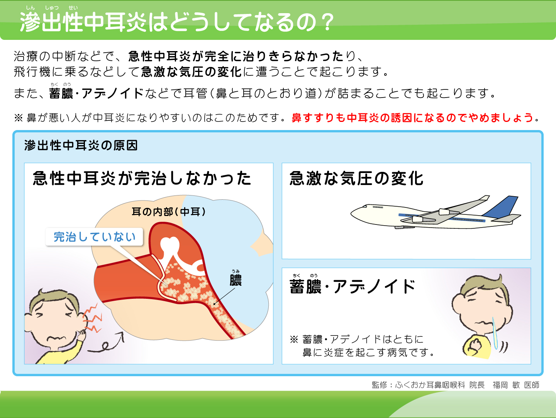 【画像】滲出性中耳炎の原因解説