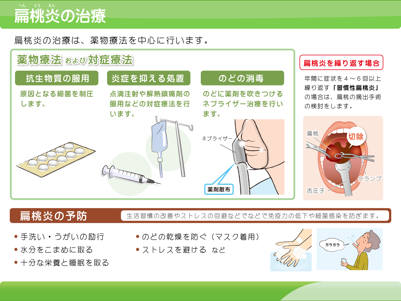 【画像】扁桃炎の治療
